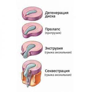 секвестрированная грыжа диска