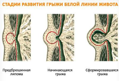 Стадии развития грыжи