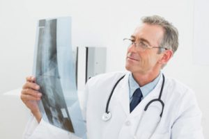 Остеофити грудного отдела позвоночника: причини и лечение