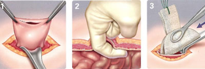 Этапы оперирования грыжи