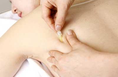проведение карбокситерапии