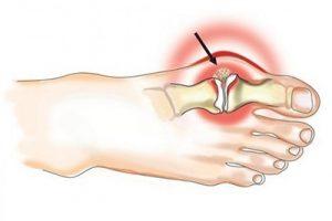 рисунок искревления пальца на ноге
