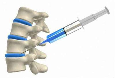 Инъекция при остеохогдрозе
