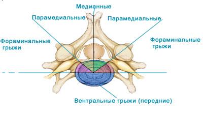 Медианно парамедианная грыжа диска