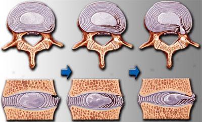 Какой врач лечит остеохондроз шейного отдела?