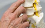Что такое фораминальная грыжа и как ее лечить?