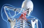 Как проявляется остеохондроз шейного отдела: причины и лечение