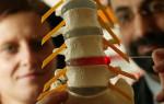 Как проводится лечение грыжи позвоночника?