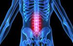 Лечение остеохондроза поясничного отдела 2 степени