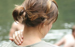Как лечить остеохондроз шейного отдела 2 степени?