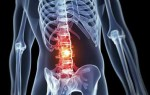 Основные симптомы остеохондроза поясничного отдела и его лечение