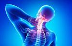 Симптомы и лечение остеохондроза нервных окончаний